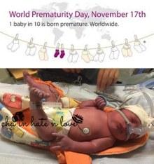 Foto Mikael beberapa detik setelah diangkat dari rahim